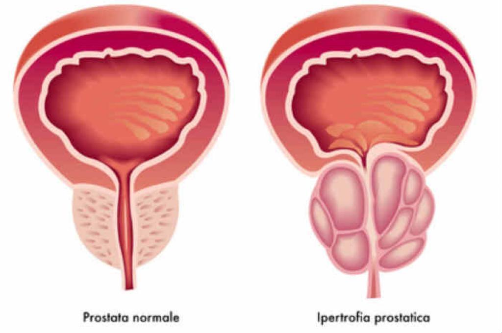 IPB e disuria ostruttiva: la terapia medica combinata