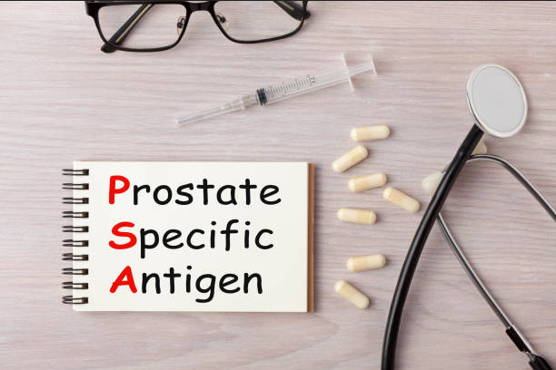 prostata-esame-psa-alto-perchè-ultime-notizie