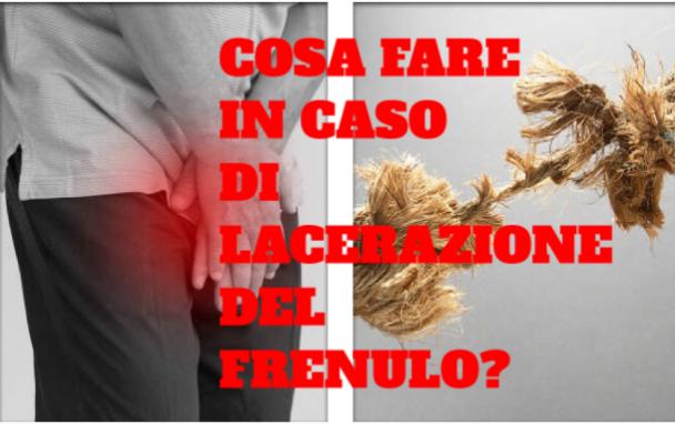 Cosa fare in caso di lacerazione del frenulo? L'urologo risponde